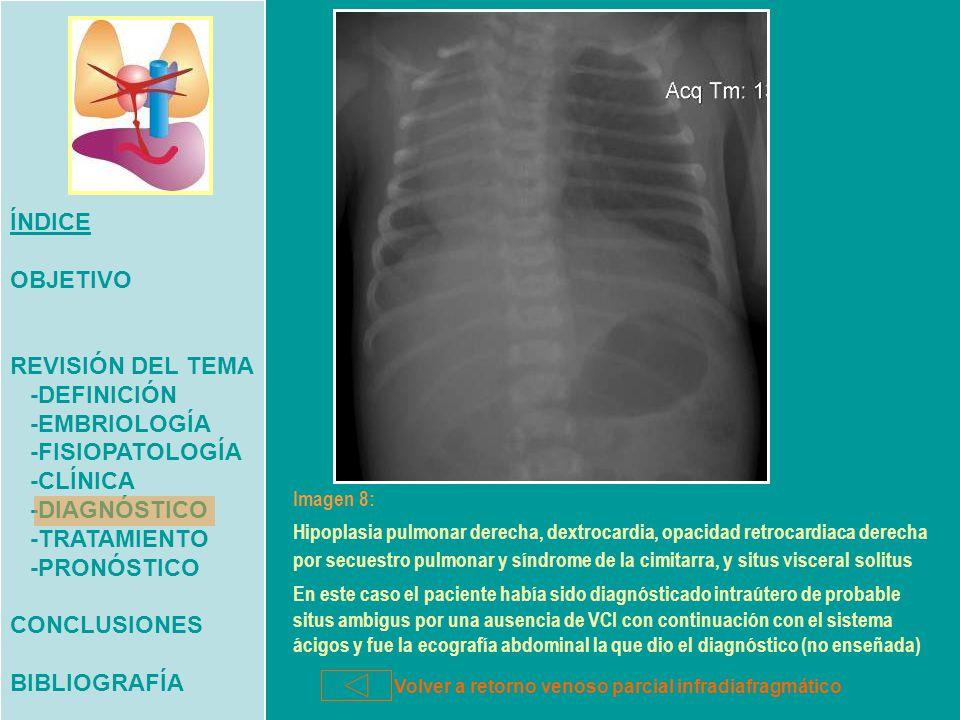 Contemporáneo Secuestro Definición Anatomía Ornamento - Imágenes de ...