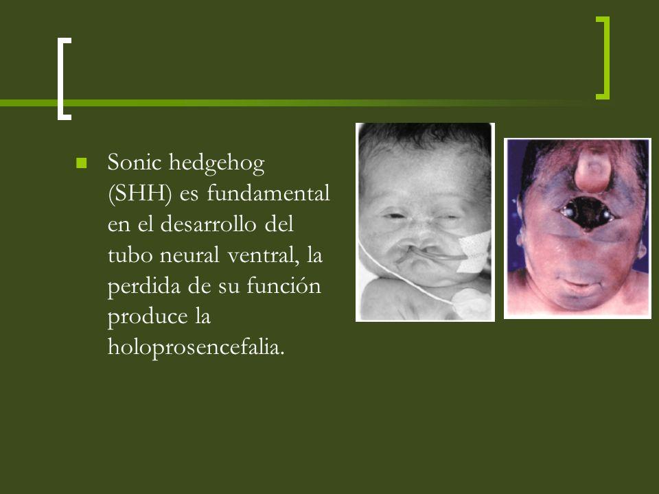 Sonic hedgehog (SHH) es fundamental en el desarrollo del tubo neural ventral, la perdida de su función produce la holoprosencefalia.