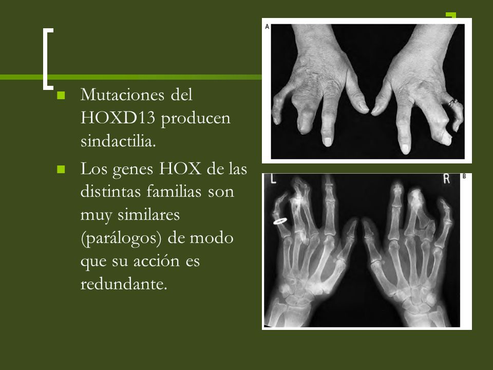 Mutaciones del HOXD13 producen sindactilia.
