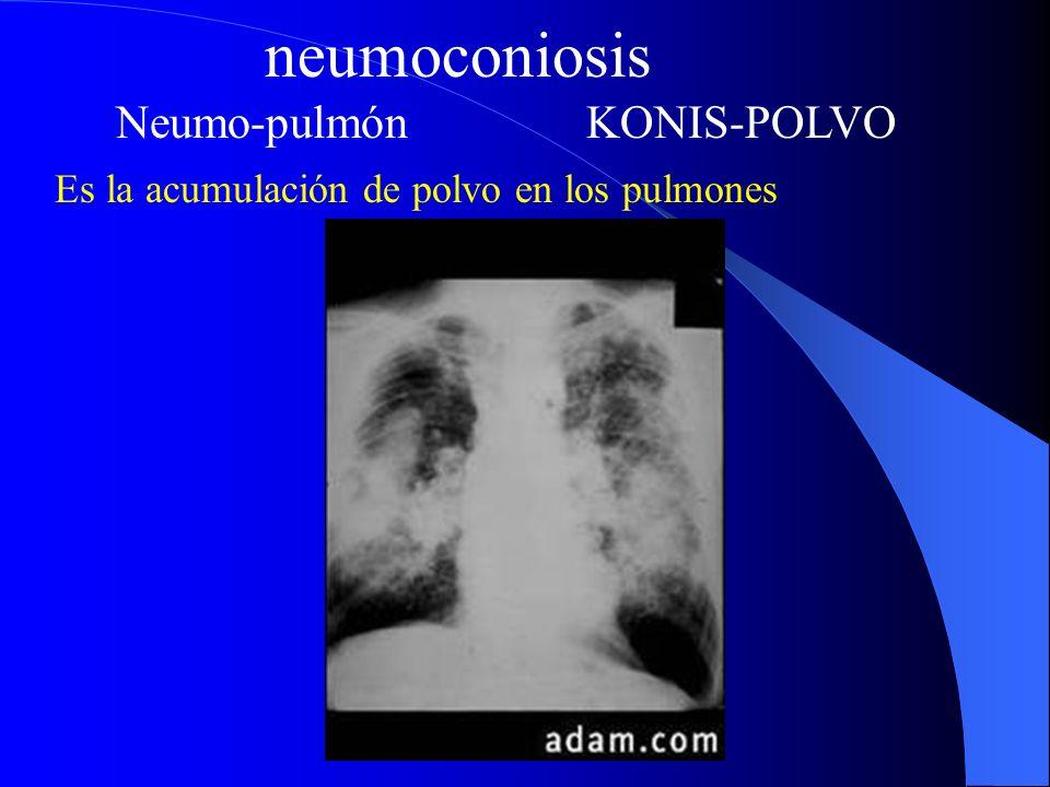 neumoconiosis Neumo-pulmón KONIS-POLVO