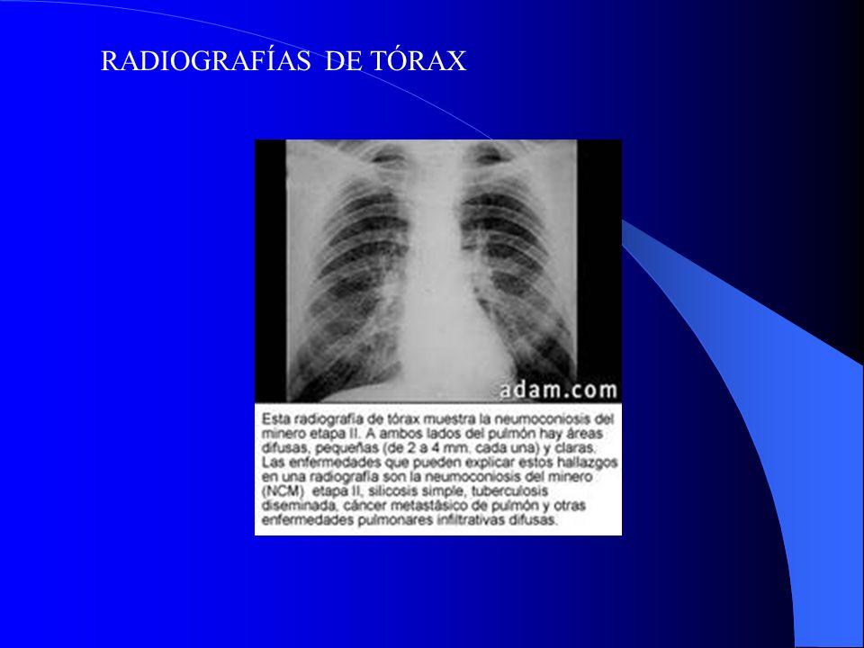 RADIOGRAFÍAS DE TÓRAX