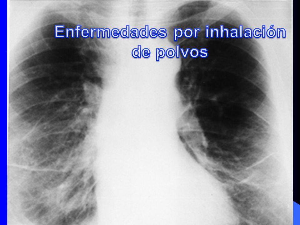 Enfermedades por inhalación de polvos