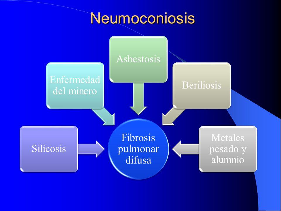 Neumoconiosis Fibrosis pulmonar difusa Silicosis Enfermedad del minero