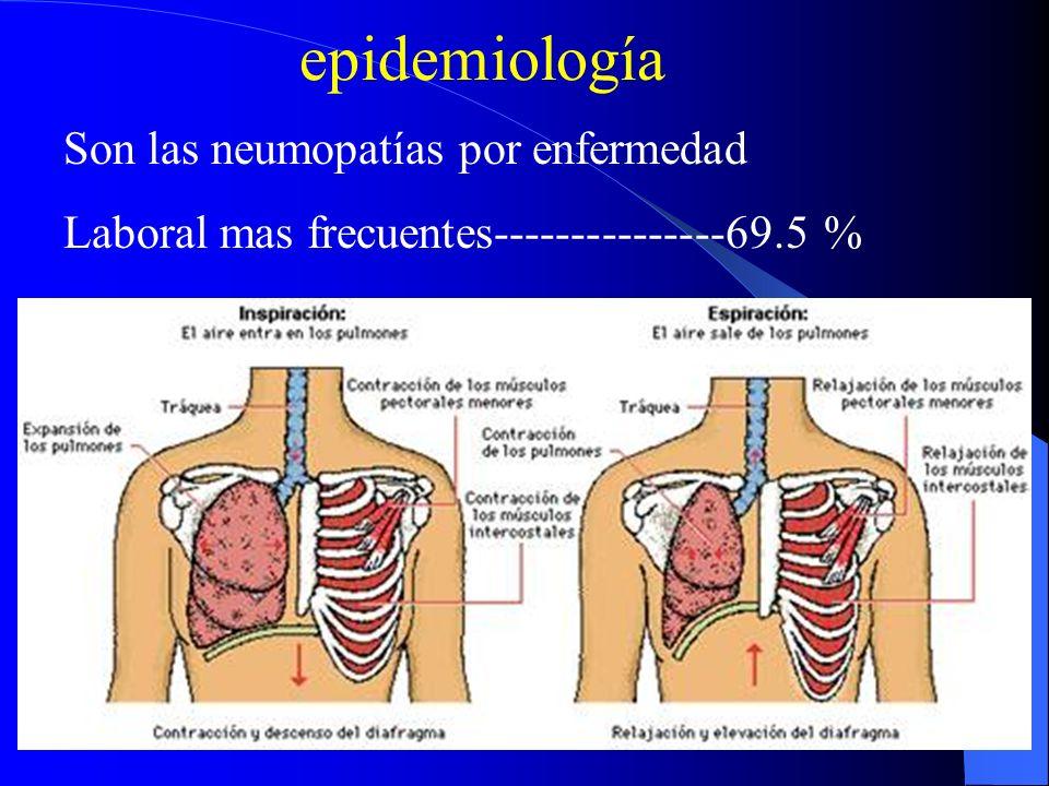 epidemiología Son las neumopatías por enfermedad