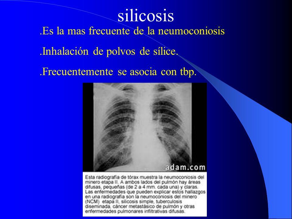 silicosis .Es la mas frecuente de la neumoconiosis