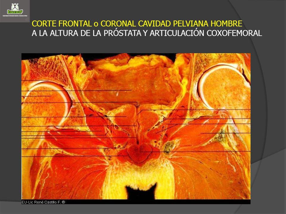 CORTE FRONTAL o CORONAL CAVIDAD PELVIANA HOMBRE