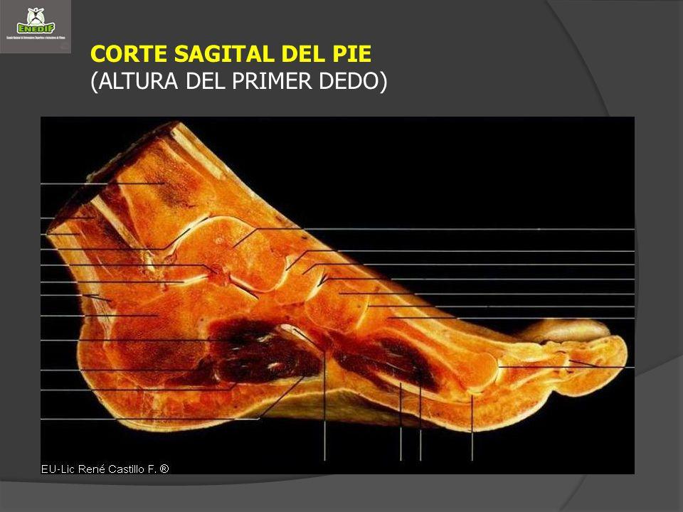 CORTE SAGITAL DEL PIE (ALTURA DEL PRIMER DEDO)