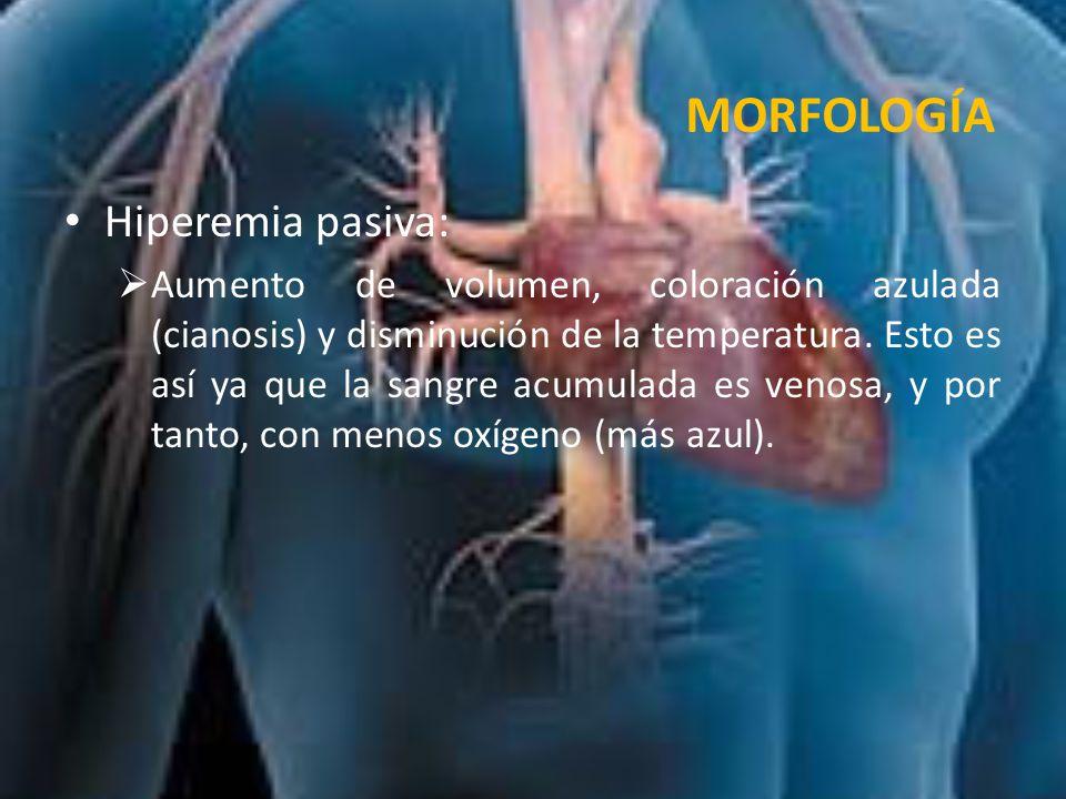 MORFOLOGÍA Hiperemia pasiva: