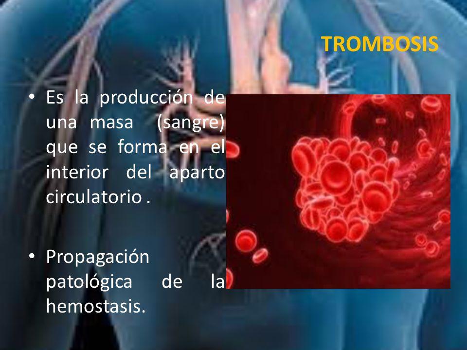 TROMBOSIS Es la producción de una masa (sangre) que se forma en el interior del aparto circulatorio .