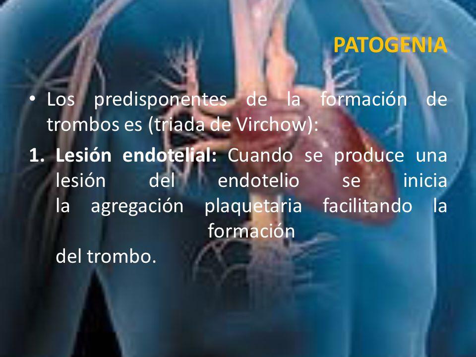 PATOGENIA Los predisponentes de la formación de trombos es (triada de Virchow):