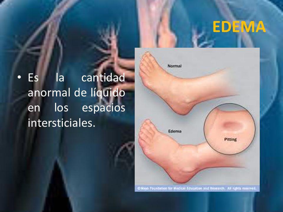 EDEMA Es la cantidad anormal de líquido en los espacios intersticiales.