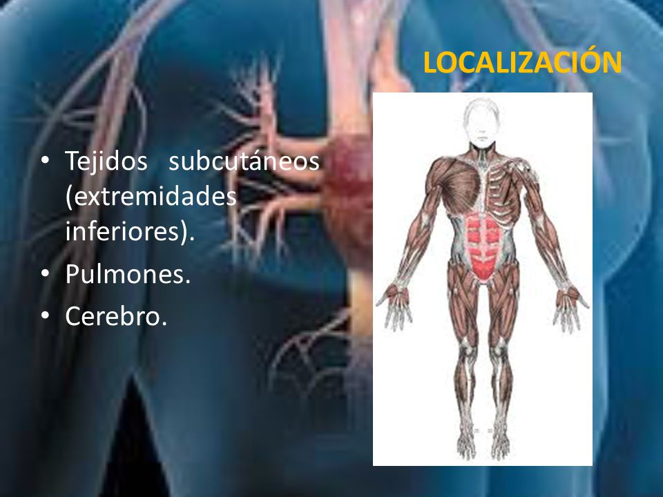LOCALIZACIÓN Tejidos subcutáneos (extremidades inferiores). Pulmones.