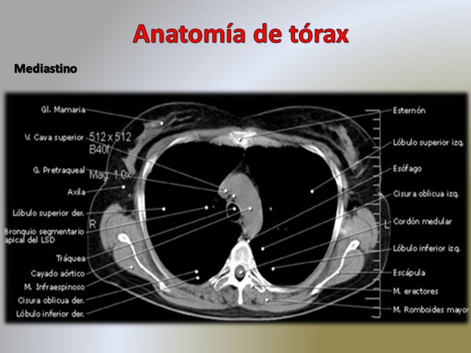Lujoso Ct Tórax Anatomía Embellecimiento - Anatomía de Las ...
