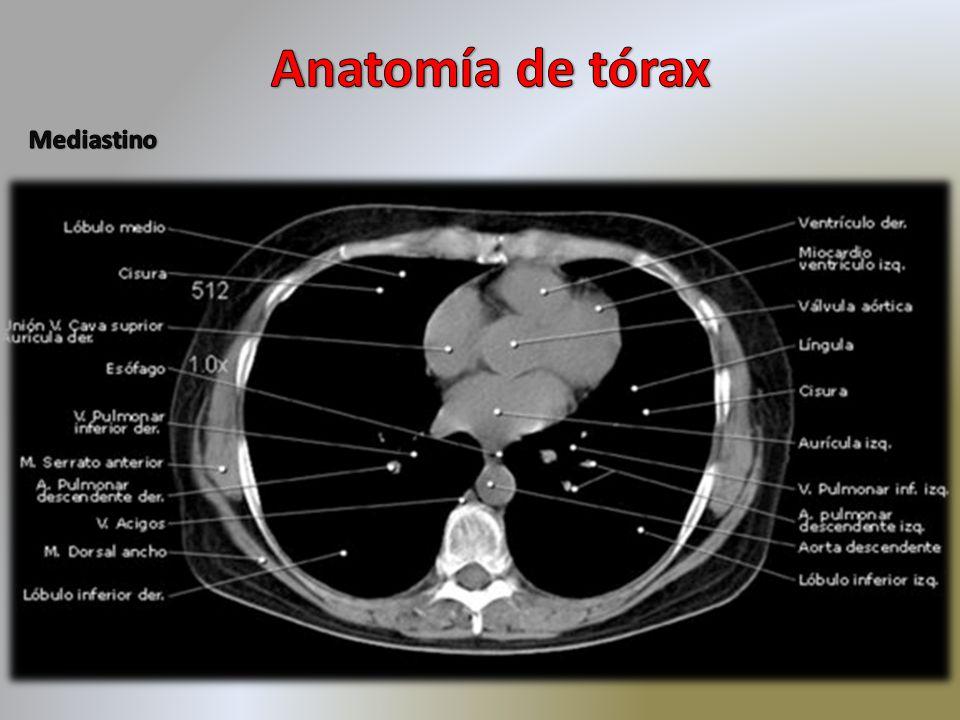 Encantador Ct Anatomía Pulmonar Regalo - Anatomía de Las Imágenesdel ...