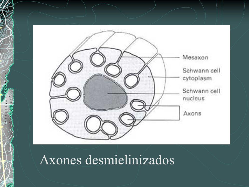 Axones desmielinizados