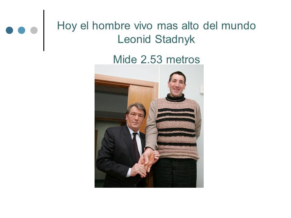 Hoy el hombre vivo mas alto del mundo Leonid Stadnyk