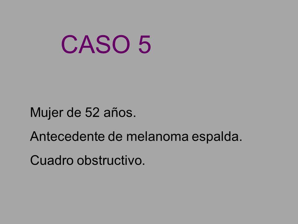 CASO 5 Mujer de 52 años. Antecedente de melanoma espalda.