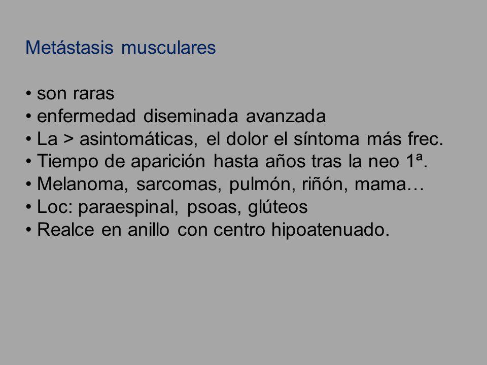 Metástasis musculares