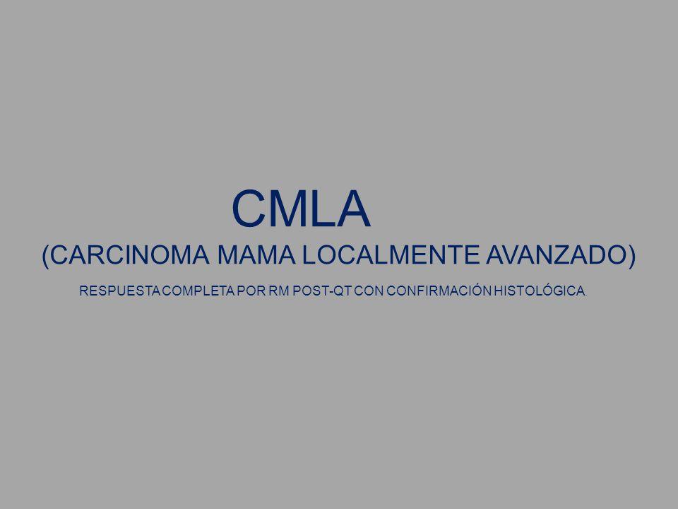 CMLA(CARCINOMA MAMA LOCALMENTE AVANZADO) RESPUESTA COMPLETA POR RM POST-QT CON CONFIRMACIÓN HISTOLÓGICA.
