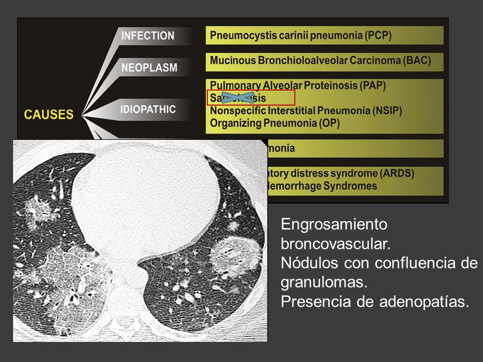 Engrosamiento broncovascular.