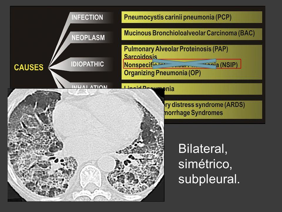 Bilateral, simétrico, subpleural.