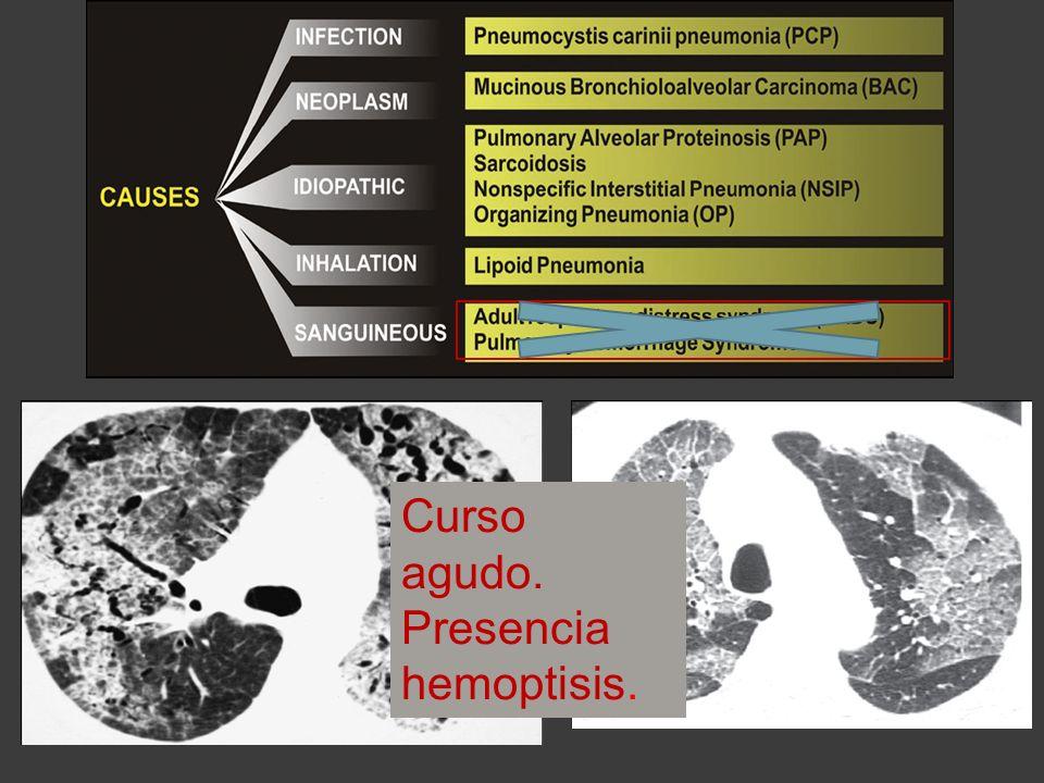 Curso agudo. Presencia hemoptisis.