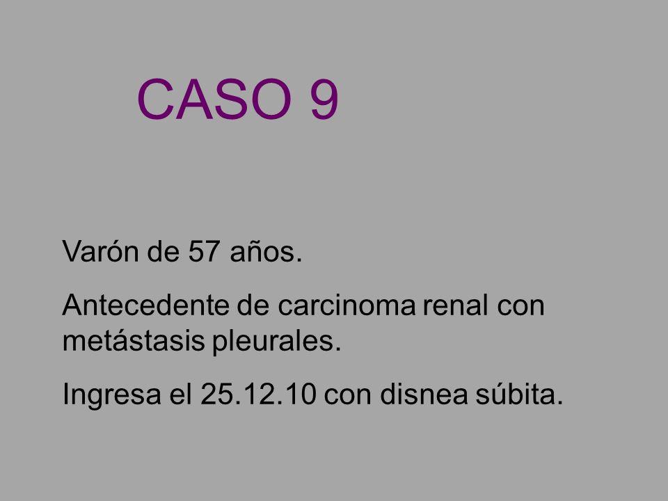 CASO 9 Varón de 57 años. Antecedente de carcinoma renal con metástasis pleurales.