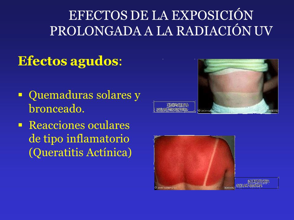 EFECTOS DE LA EXPOSICIÓN PROLONGADA A LA RADIACIÓN UV