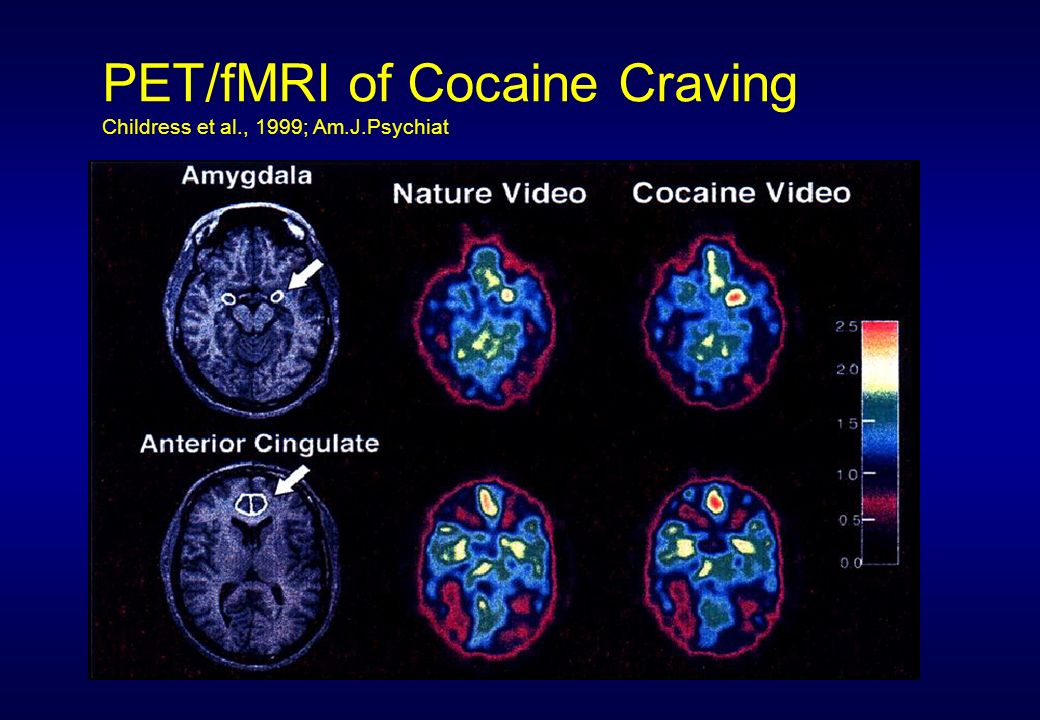 PET/fMRI of Cocaine Craving Childress et al., 1999; Am.J.Psychiat