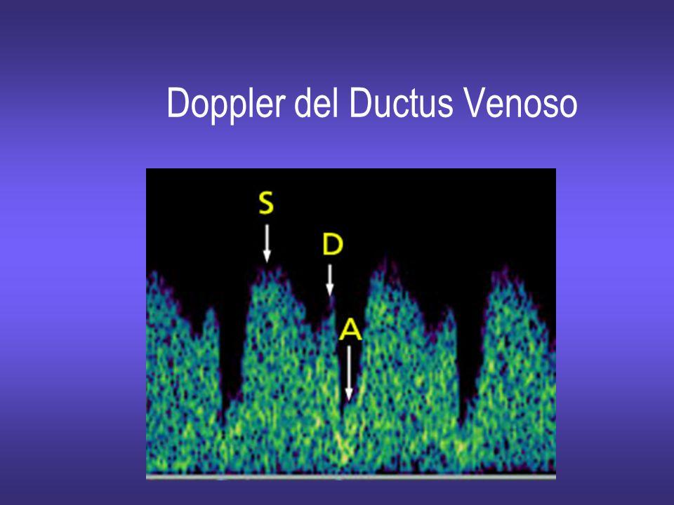 Doppler del Ductus Venoso