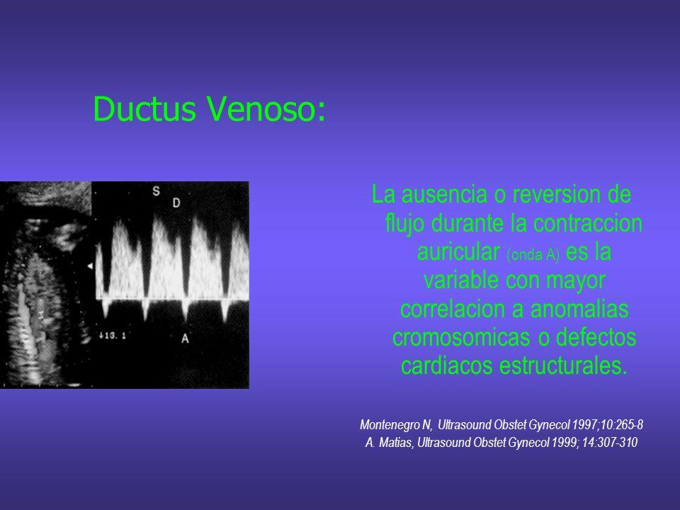 Ductus Venoso: