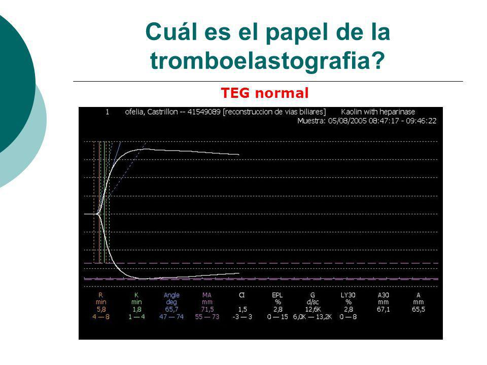 Cuál es el papel de la tromboelastografia