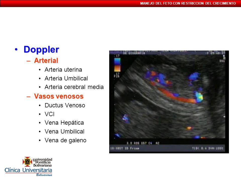 Doppler Arterial Vasos venosos Arteria uterina Arteria Umbilical