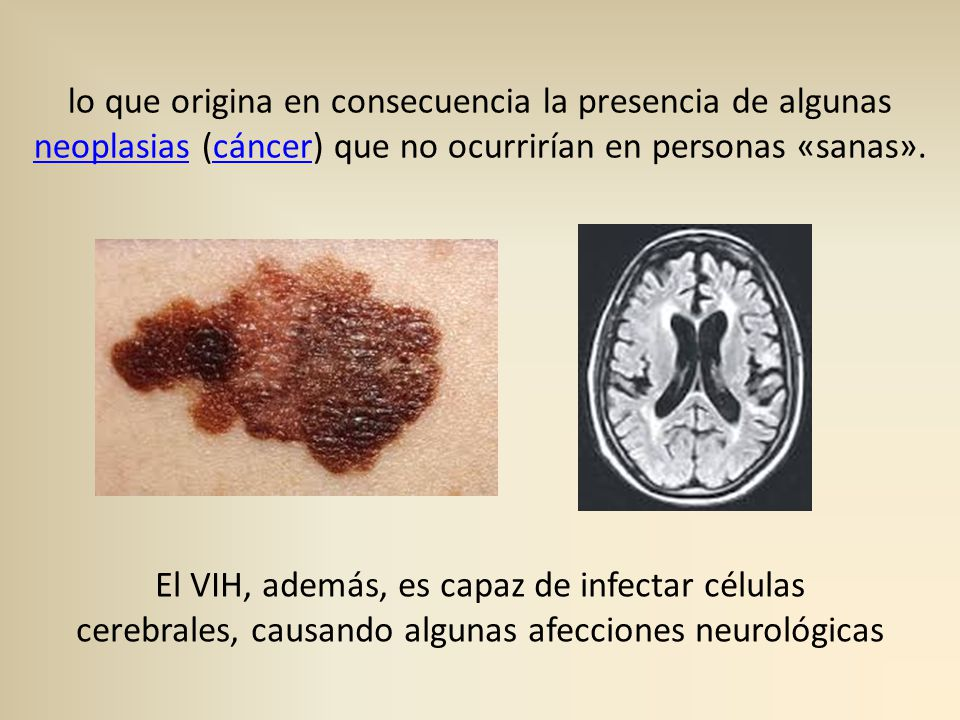 SIDA (síndrome de inmunodeficiencia adquirida) - ppt descargar
