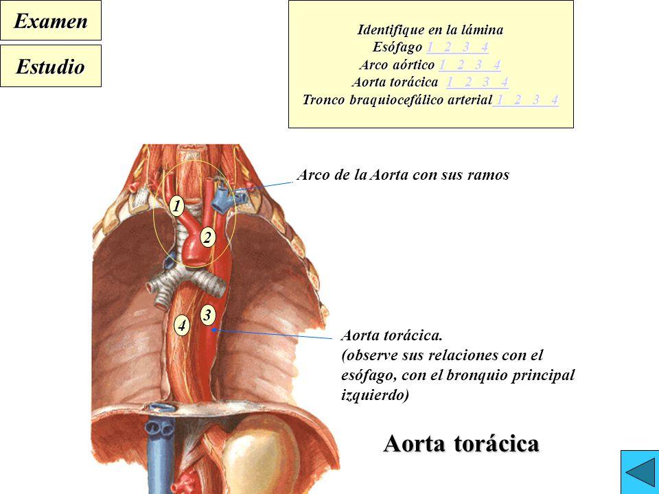 Perfecto Arco De La Anatomía Aorta Molde - Anatomía de Las ...