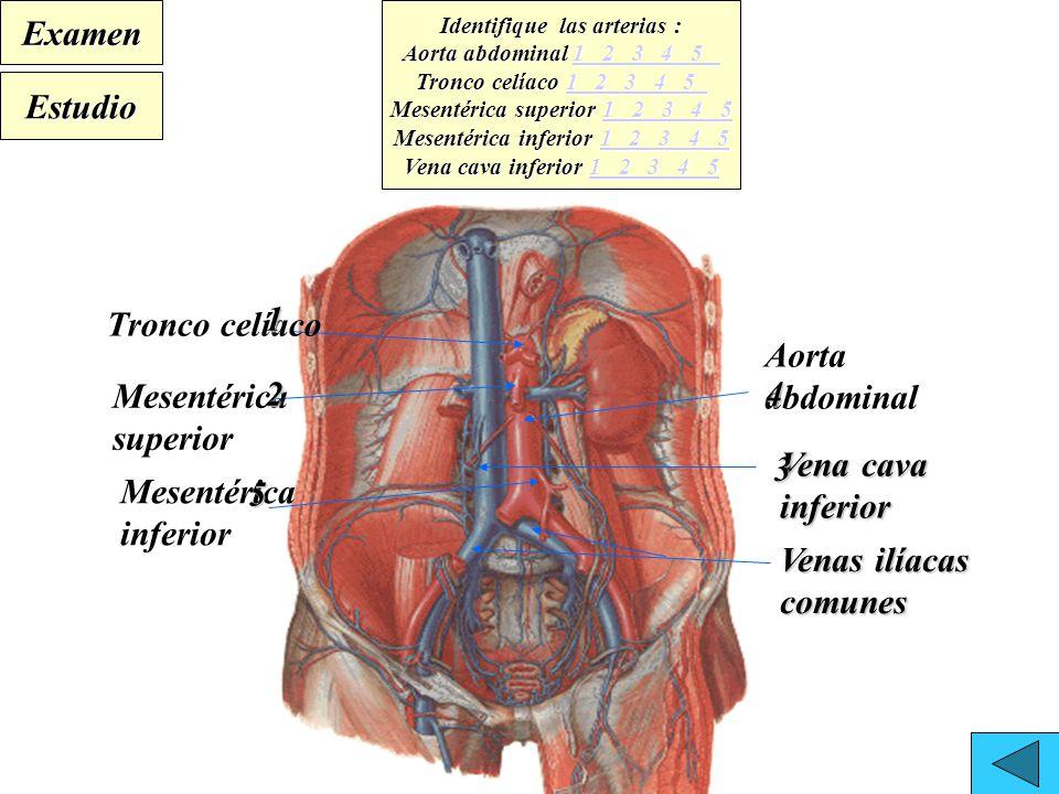 Dorable Tronco Celíaco Anatomía Foto - Anatomía de Las Imágenesdel ...