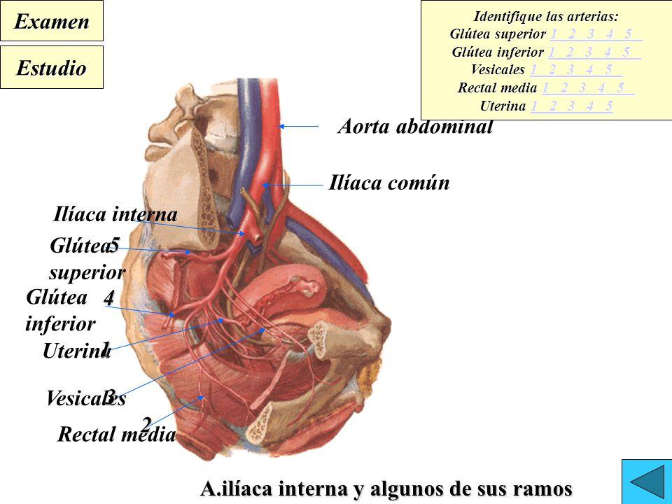 Único Mnemónico De La Arteria Ilíaca Interna Imagen - Anatomía de ...