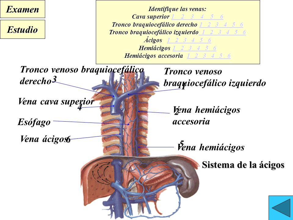 Dorable La Vena Cava Superior Anatomía Elaboración - Anatomía de Las ...