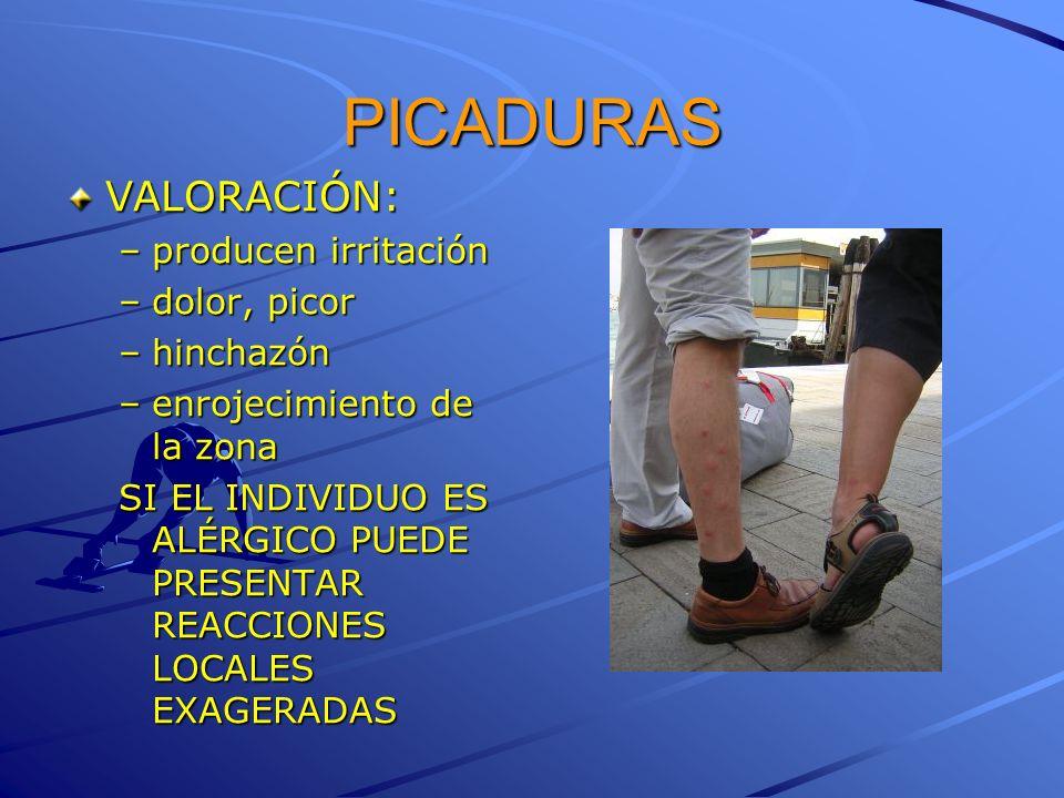 PICADURAS VALORACIÓN: producen irritación dolor, picor hinchazón