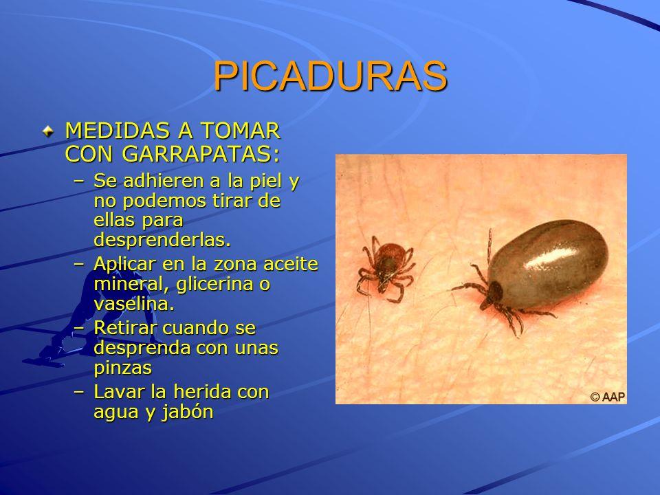 PICADURAS MEDIDAS A TOMAR CON GARRAPATAS: