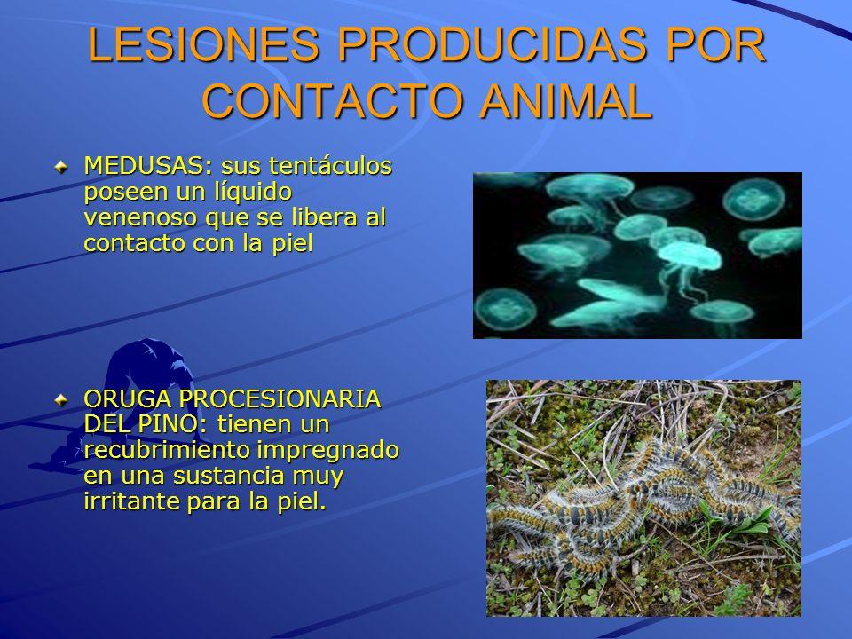 LESIONES PRODUCIDAS POR CONTACTO ANIMAL