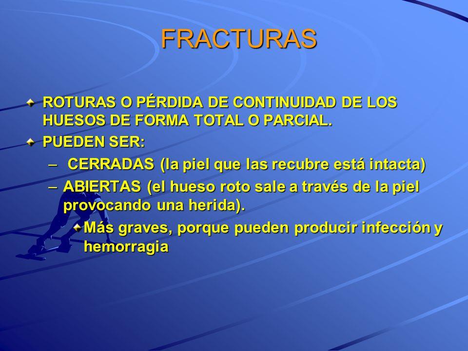 FRACTURAS CERRADAS (la piel que las recubre está intacta)