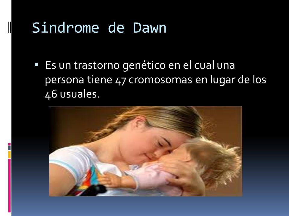 Sindrome de DawnEs un trastorno genético en el cual una persona tiene 47 cromosomas en lugar de los 46 usuales.