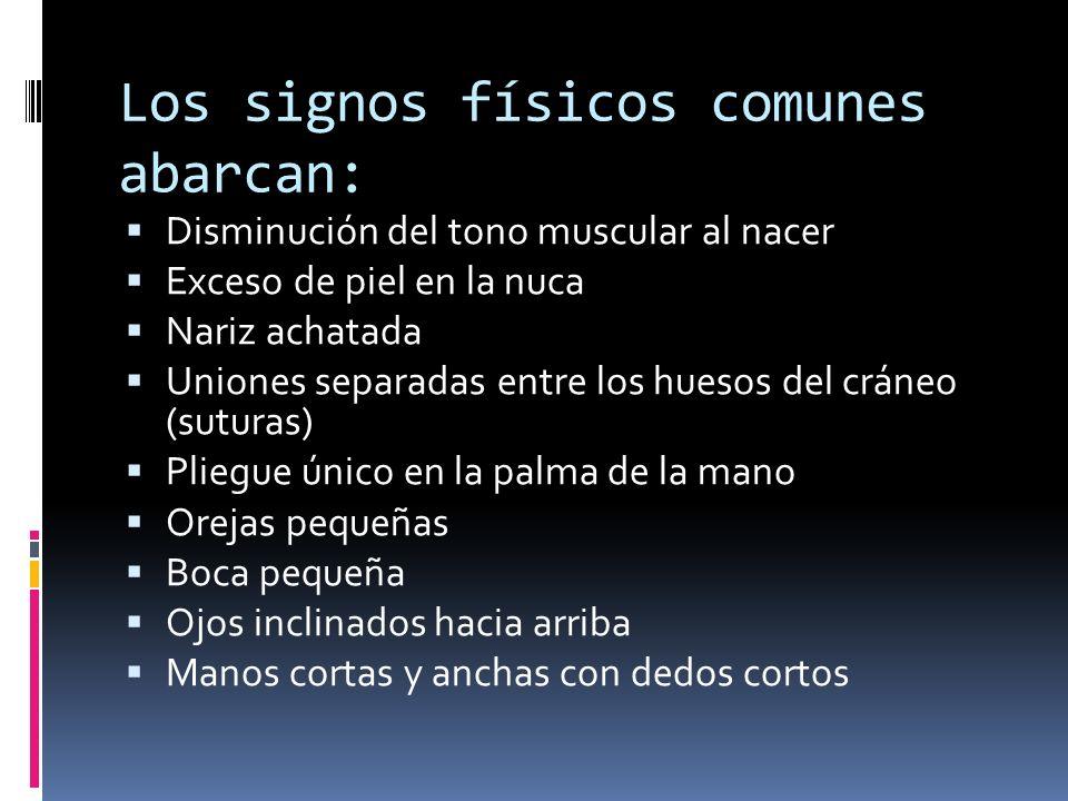 Los signos físicos comunes abarcan: