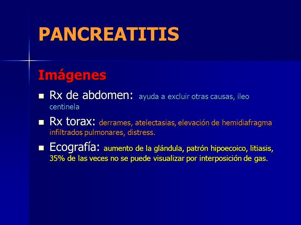 PANCREATITIS Imágenes