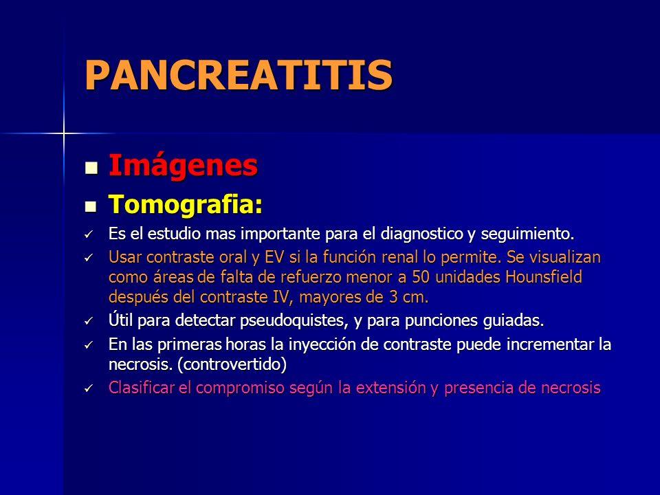 PANCREATITIS Imágenes Tomografia: