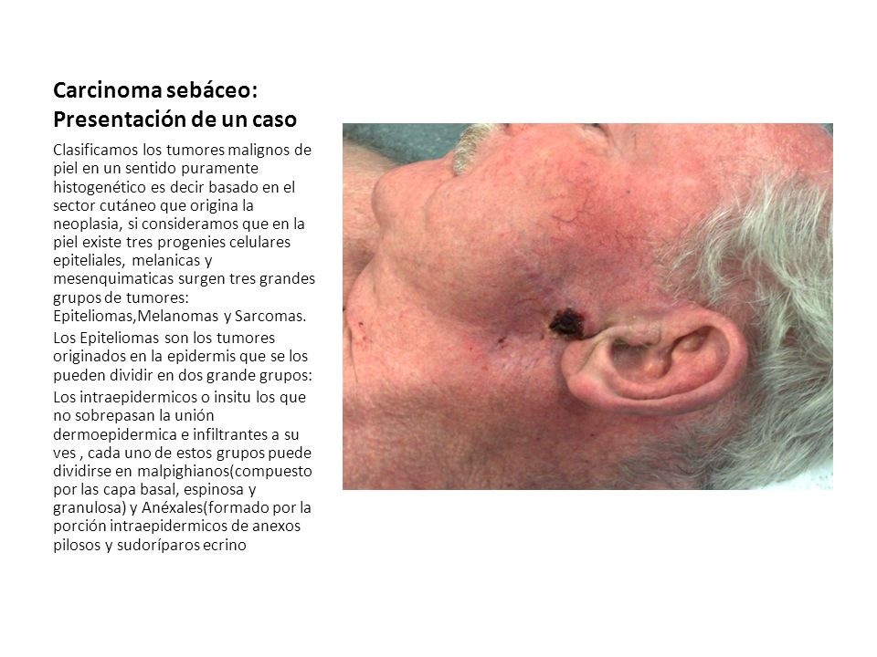 Carcinoma sebáceo: Presentación de un caso
