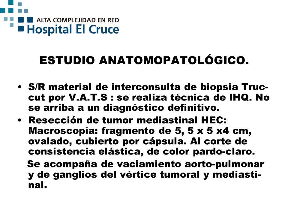 ESTUDIO ANATOMOPATOLÓGICO.