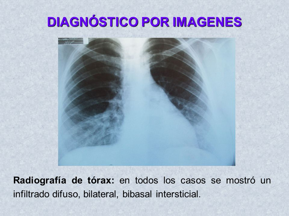 DIAGNÓSTICO POR IMAGENES