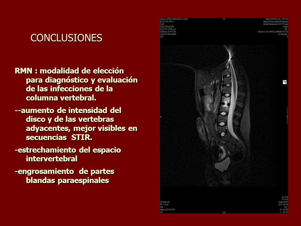 CONCLUSIONES RMN : modalidad de elección para diagnóstico y evaluación de las infecciones de la columna vertebral.